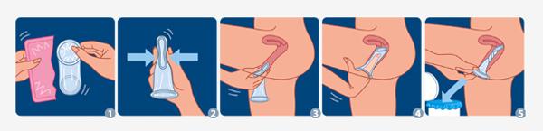 Preservatif-feminin